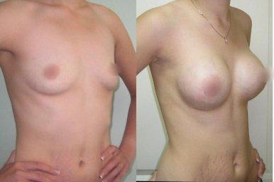 Устранение ассиметрии и тубулярной груди